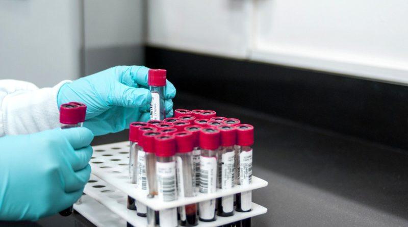Provette laboratorio coronavirus